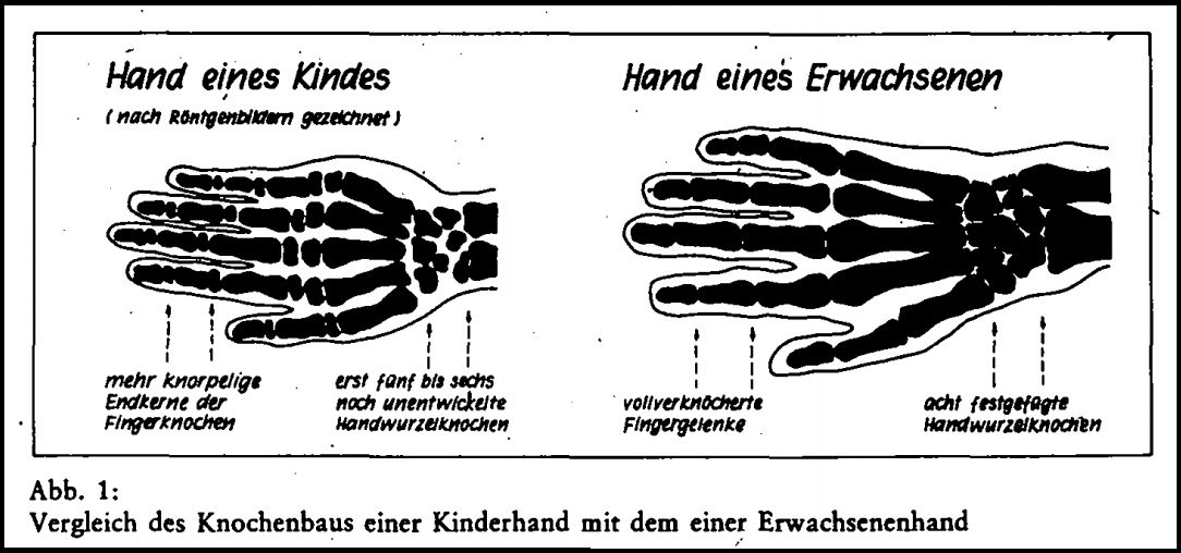 Knochhand